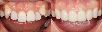 前牙突出案例