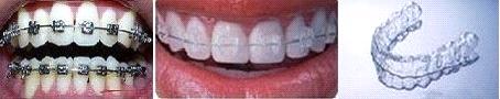 龅牙矫正方式