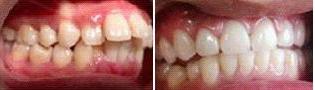 龅牙矫正案例